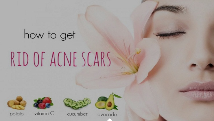 How to get rid of acne fast naturally Bravo, this